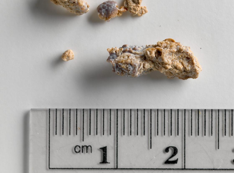 Resultado de imagem para pedras nos rins cebola fotos